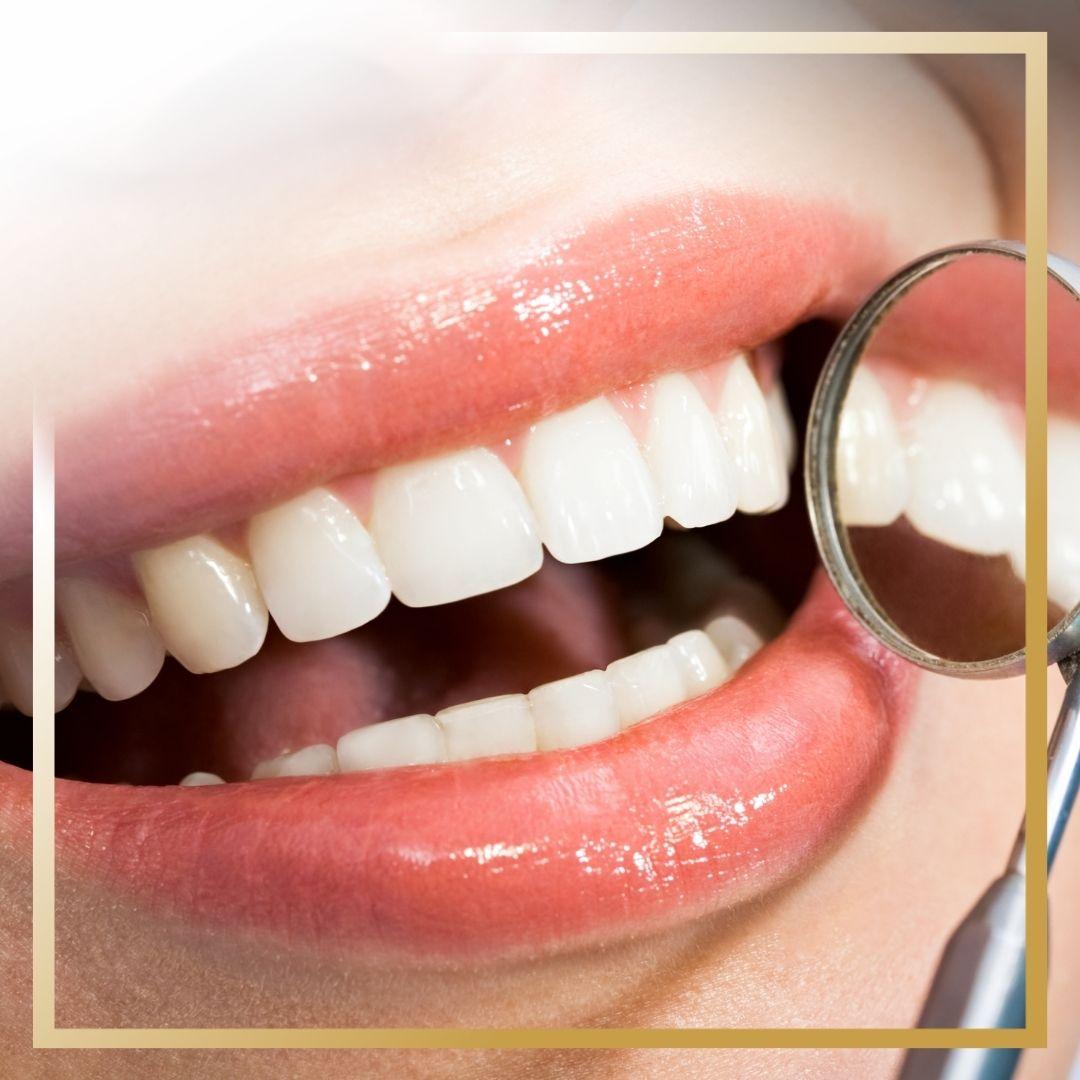 Bonding zębów Gdańsk